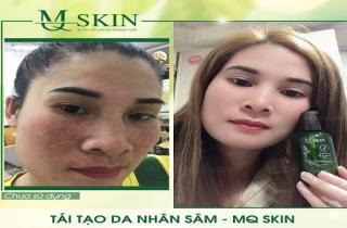 Một liệu trình Serum thay da nhân sâm MQ Skin bao nhiêu chai?
